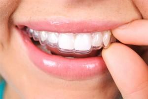 ortodoncia-invisalign-en-paiporta